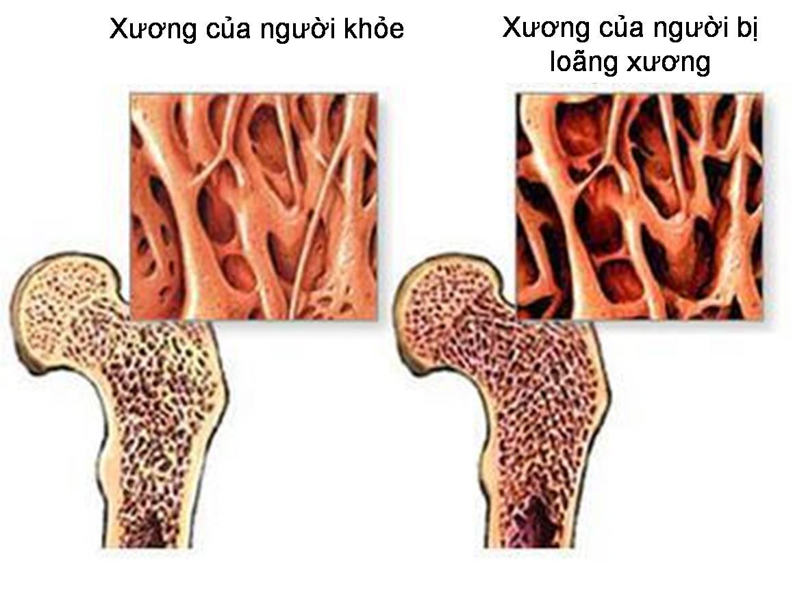 Bệnh Loãng xương – triệu chứng và điều trị