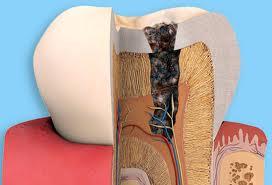 Thuốc nam chữa đau răng, sâu răng, sưng lợi