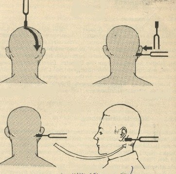 Cách đo thính lực bằng âm mẫu