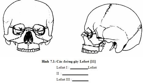 Chấn thương hàm mặt