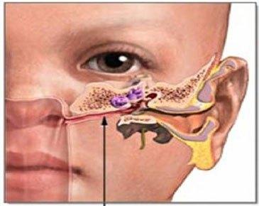 Dị vật ở trong tai thường gặp ở trẻ em