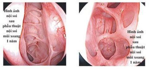 phẫu thuật nội soi mũi xoang