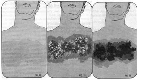 Cách sơ cứu và chữa trị bỏng