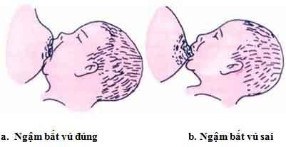 Cách ngậm bắt vú của trẻ khi bú mẹ