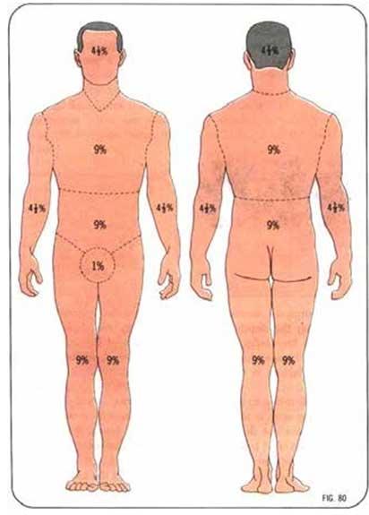 Diện tích da của cơ thể dựa theo quy tắc số 9