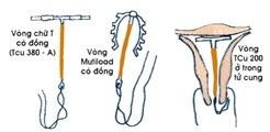 Hình 1 - Các dạng Vòng tránh thai chủ yếu đã và đang được sử dụng ở Việt Nam