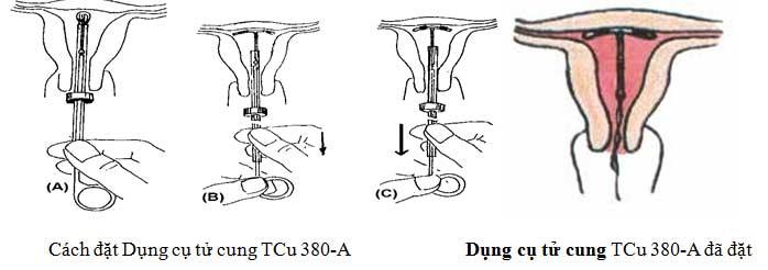 Cách đặt Vòng tránh thai TCu 380-A, Vòng tránh thai TCu 380-A đã đặt