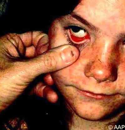 triệu chứng viêm kết mạc do sởi