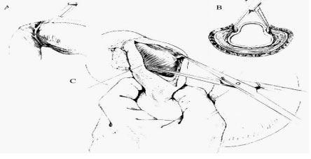 Kỹ thuật xẻ cơ môn vị ngoài niêm mạc