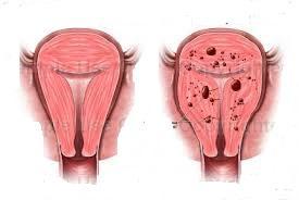 Đông y chữa lạc nội mạc tử cung