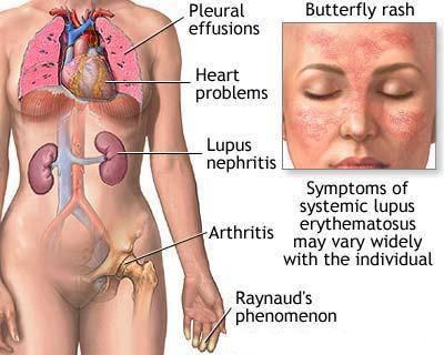 Viêm thận Lupus – triệu chứng, điều trị