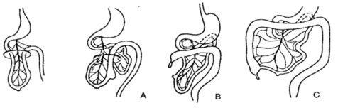 Quá trình ruột xoay trong phát triển bào thai