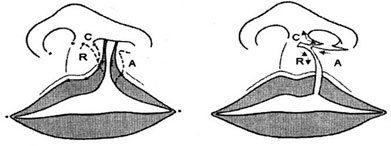 Millard – Kỹ thuật vạt xoay trượt