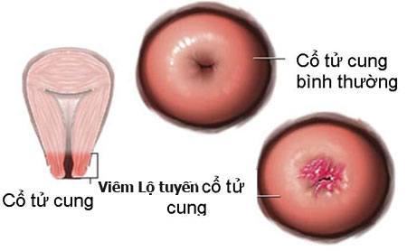 Đông y chữa Viêm lộ tuyến cổ tử cung