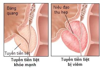 Đông y chữa Viêm tuyến tiền liệt