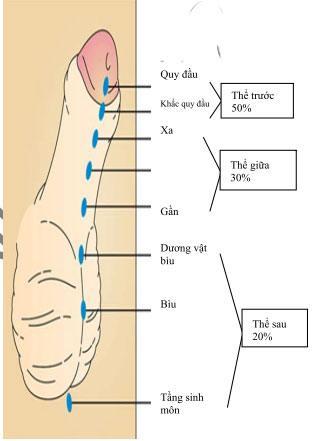 Sơ đồ phân loại tật lỗ tiểu thấp