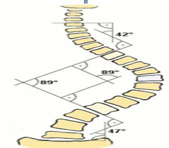 Mức độ vẹo cột sống