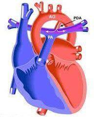 Còn ống động mạch ở trẻ