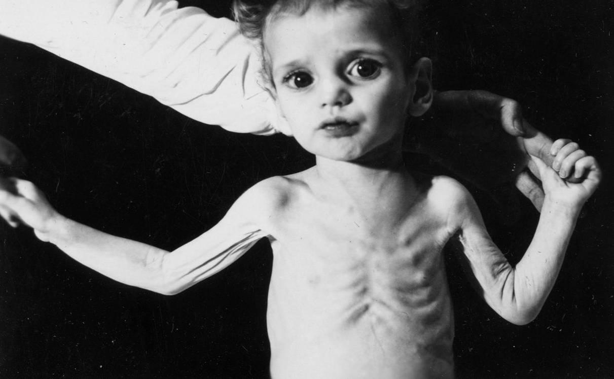 Bệnh còi xương ở trẻ – Biểu hiện, cách phòng chống