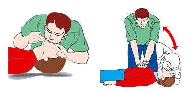 Phương pháp hồi sức ép tim ngoài lồng ngực