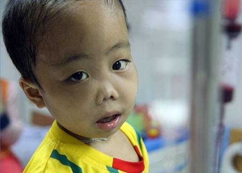 Trẻ bị Bệnh Thalassemia