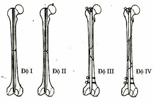 Phân loại gãy thân xương đùi