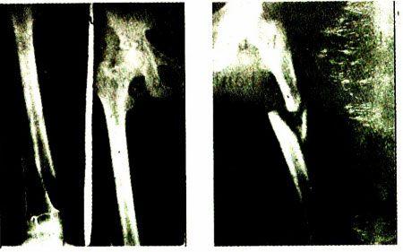 Xquang gãy thân xương đùi