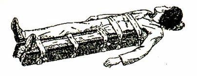 Bất động gãy xương đùi bằng nẹp gỗ