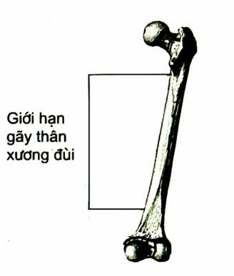 Vị trí gãy thân xương đùi
