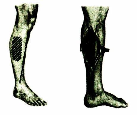 Gãy hai xương cẳng chân – chẩn đoán và điều trị