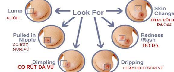 Các dấu hiệu ung thư vú