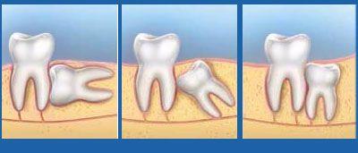 Răng khôn mọc lệch ngầm dưới xương – Chẩn đoán, điều trị