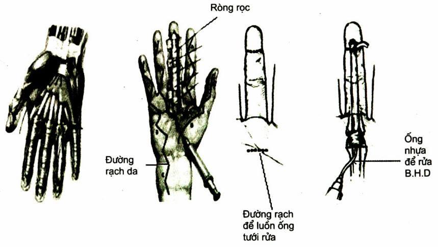 Viêm mủ bao hoạt dịch gân gấp ngón tay