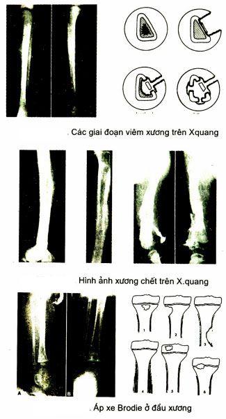 viêm xương trên Xquang