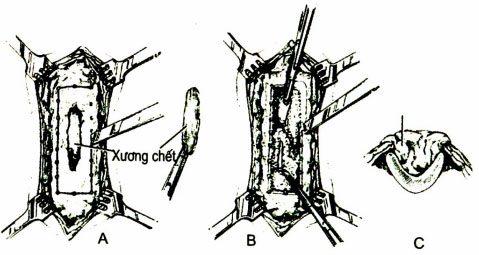 Phẫu thuật viêm xương