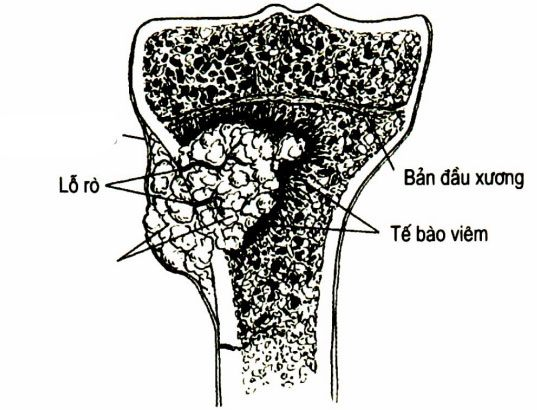 Giải phẫu bệnh của viêm xương