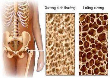 Nguyên nhân và cơ chế gây bệnh loãng xương