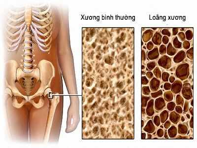 Loãng xương là bệnh lý xương khớp có tính chất toàn thân do chất lượng xương bị giảm
