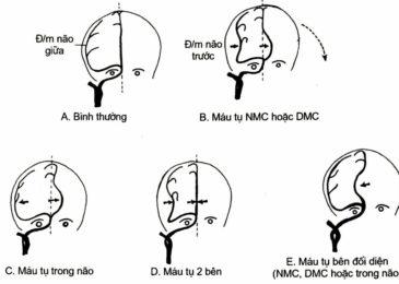 Triệu chứng và chụp cắt lớp (CTscan) chấn thương sọ não