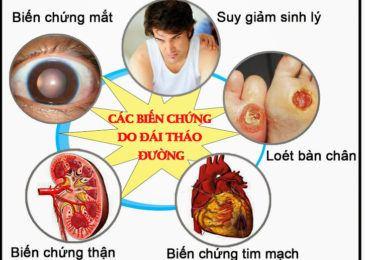 Cách trị bệnh tiểu đường tại nhà kiểm soát tốt đường huyết