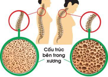 Triệu chứng và biểu hiện của bệnh loãng xương