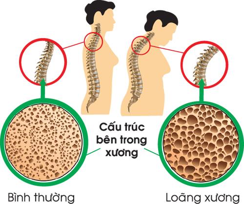 Loãng xương thấy rõ triệu chứng gù vẹo cột sống