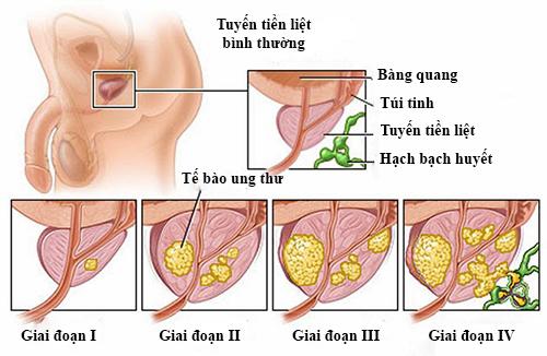 Ung thư tuyến tiền liệt