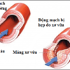 Những triệu chứng của bệnh xơ vữa động mạch
