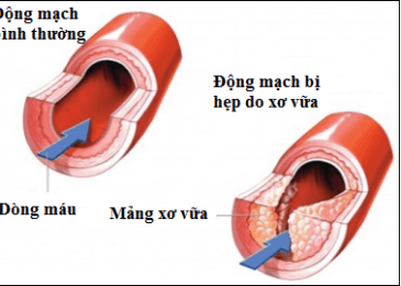 Dấu hiệu của Nhồi máu cơ tim