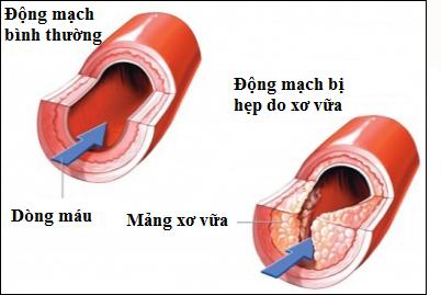 Vữa xơ động mạch do ăn nhiều thịt động vật