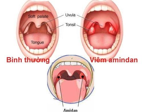 Hình ảnh của Bệnh viêm amiđan