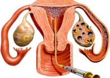 Kỹ thuật hỗ trợ sinh sản trong điều trị vô sinh hiện nay