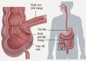 Bệnh Crohn – nguyên nhân, triệu chứng, điều trị