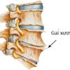Gai cột sống – nguyên nhân, triệu chứng và cách điều trị bệnh